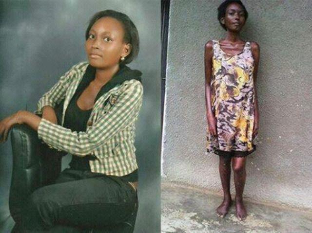 Rachael Kanyunyuzi who badly needs financial help